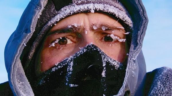 Handling Hypothermia AKA Frostbite